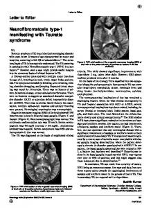 Neurofibromatosis type-1 manifesting with Tourette syndrome