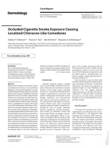Occluded Cigarette Smoke Exposure Causing ...