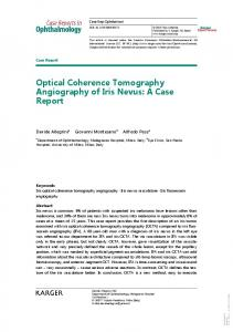 Optical Coherence Tomography Angiography of Iris