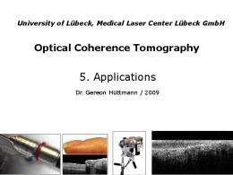 Optical Coherence Tomography for diagnosis and therapy control