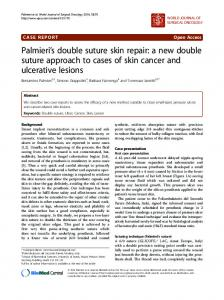 Palmieri  s double suture skin repair: a new double