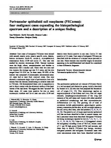 Perivascular epithelioid cell neoplasms (PEComas ... - Springer Link