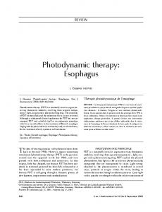 Photodynamic therapy: Esophagus - Hindawi
