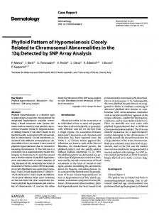 Phylloid Pattern of Hypomelanosis Closely Related to