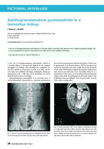 PICTORIAL INTERLUDE Xanthogranulomatous pyelonephritis in a ...