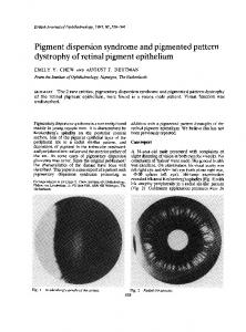 Pigment dispersion syndrome and pigmented pattern ... - Europe PMC