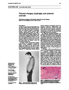 Postural changes, dysphagia, and systemic sclerosis
