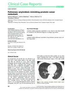 Pulmonary amyloidosis mimicking prostate ... - Wiley Online Library