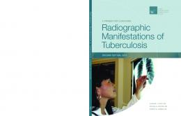 Radiographic Manifestations of Tuberculosis