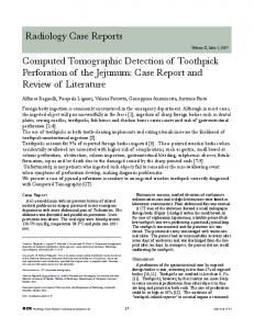 Radiology Case Reports Computed Tomographic ...