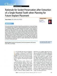 Rationale for Socket Preservation after Extraction - Canadian Dental ...