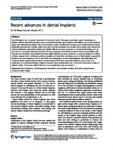 Recent advances in dental implants - Semantic Scholar