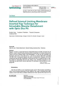 Refined Internal Limiting Membrane Inverted Flap ...