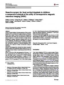 Resective surgery for focal cortical dysplasia in children