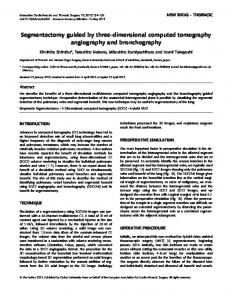 Segmentectomy guided by three-dimensional computed tomography ...