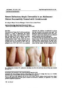 Severe Refractory Atopic Dermatitis in an