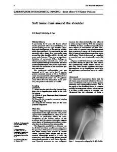 Soft tissue mass around the shoulder - Europe PMC