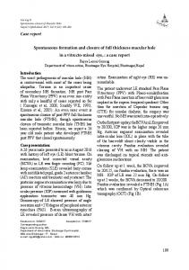 Spontaneous formation and closure of full thickness macular hole in a ...