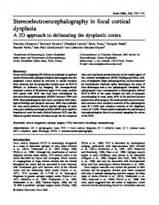 Stereoelectroencephalography in focal cortical dysplasia