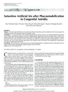 Sutureless Artificial Iris after Phacoemulsification in