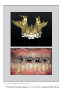 The International Journal of Periodontics & Restorative Dentistry ...