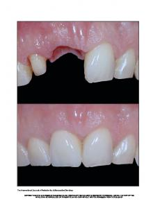 The International Journal of Periodontics & Restorative Dentistry