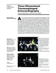 Three-Dimensional Transesophageal Echocardiography