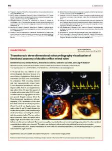Transthoracic three-dimensional echocardiography