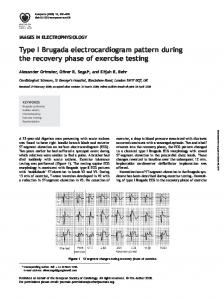 Type I Brugada electrocardiogram pattern during the ...