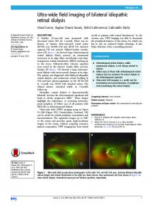 Ultra-wide field imaging of bilateral idiopathic retinal dialysis