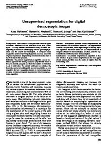 Unsupervised segmentation for digital ... - Wiley Online Library