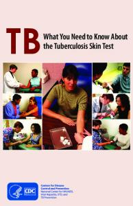 What you need to know about the TB skin test