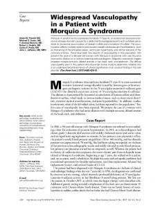 Widespread Vasculopathy in a Patient with Morquio A Syndrome